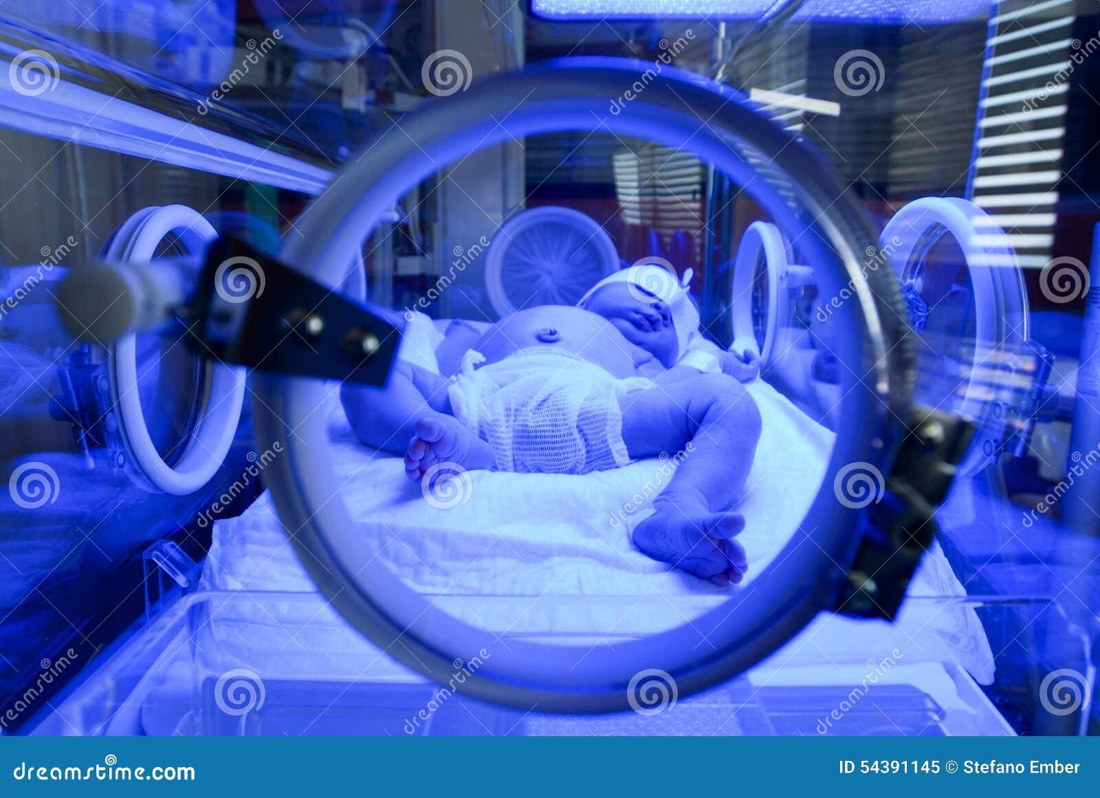 Recién nacido teniendo un tratamiento para la ictericia bajo luz ultravioleta