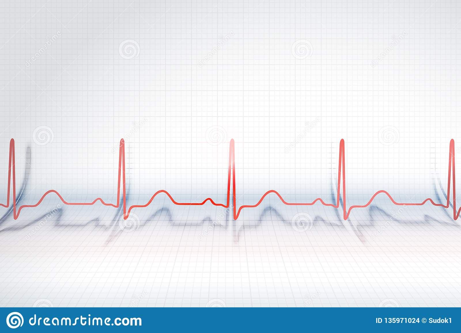 Red line of ECG chart