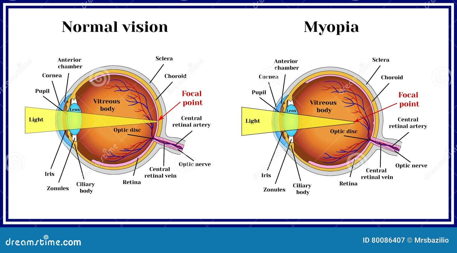refractive errors eyeball myopia medicine stock vector rh dreamstime com Refractive Error Good Refractive Errors with Astigmatism