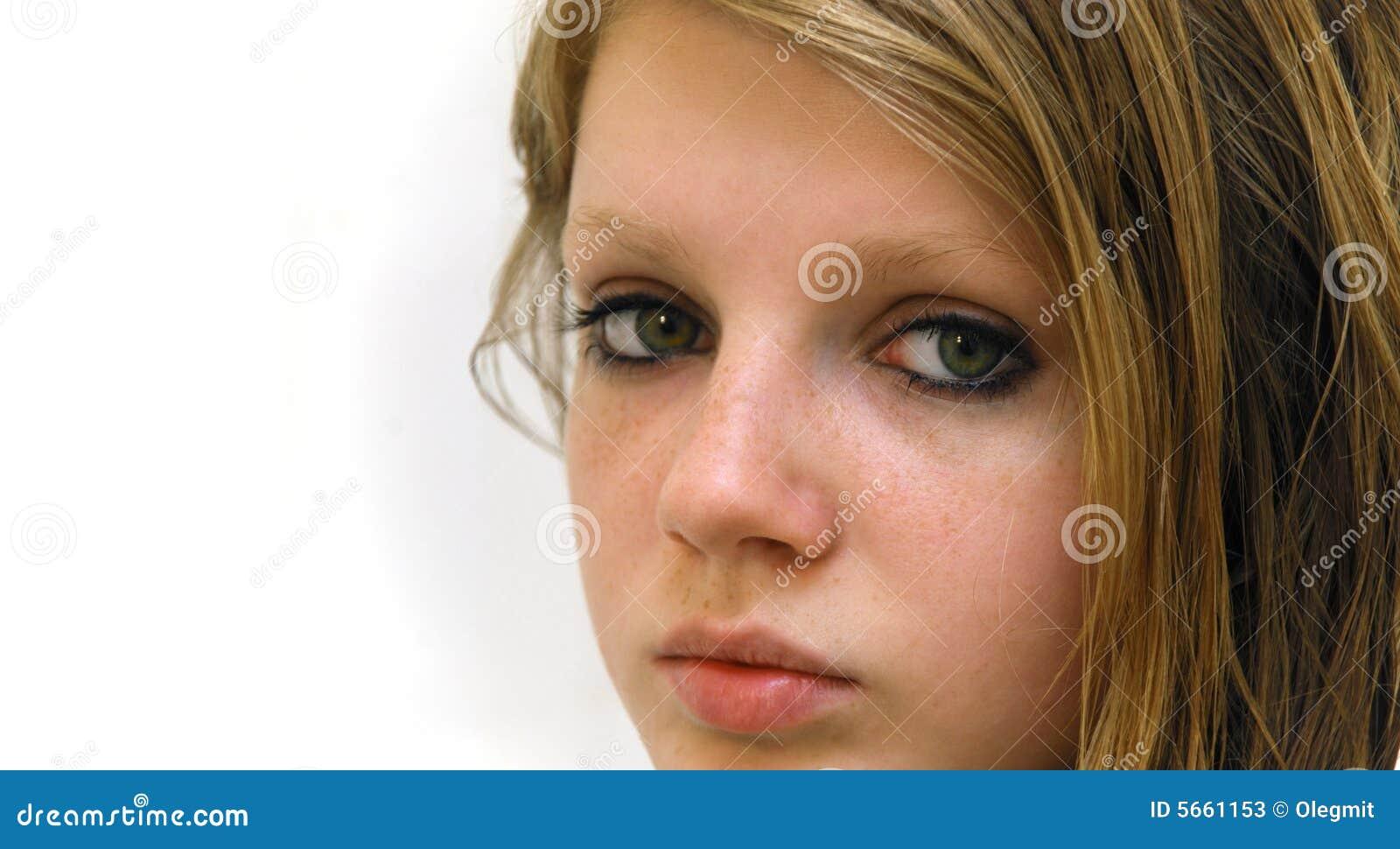 Le polissage laser de la personne contre la pigmentation