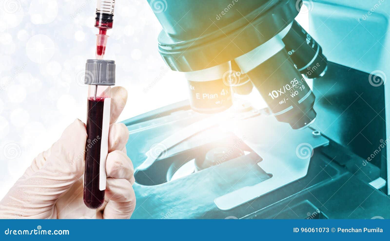Remettez tenir le sang d échantillon pour l essai avec le microscope de laboratoire