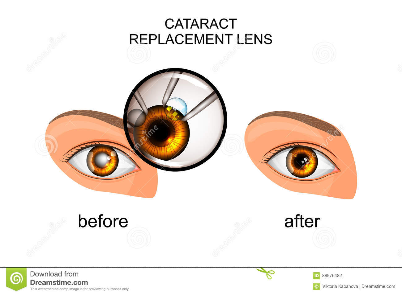 Replacement Of The Crystalline Lens In Cataract Stock Vector ...
