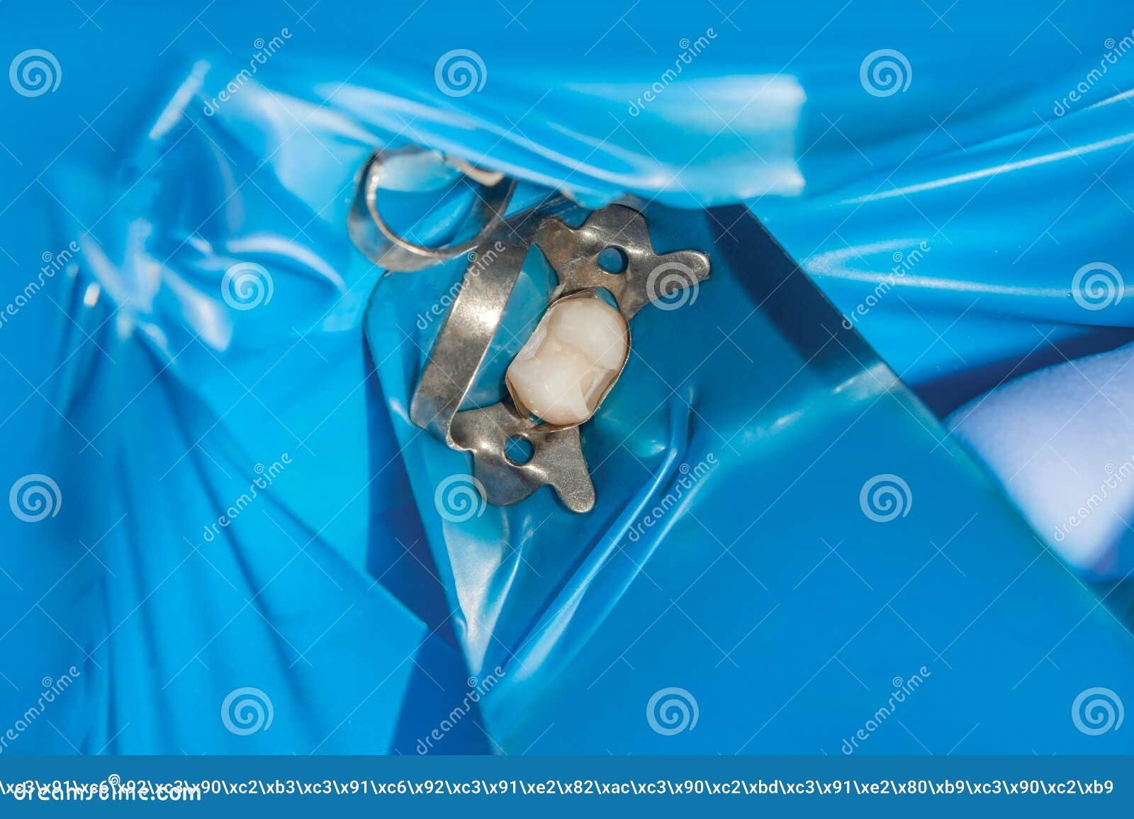 Restauration de la molaire d une dent humaine avec la matière d agrégation