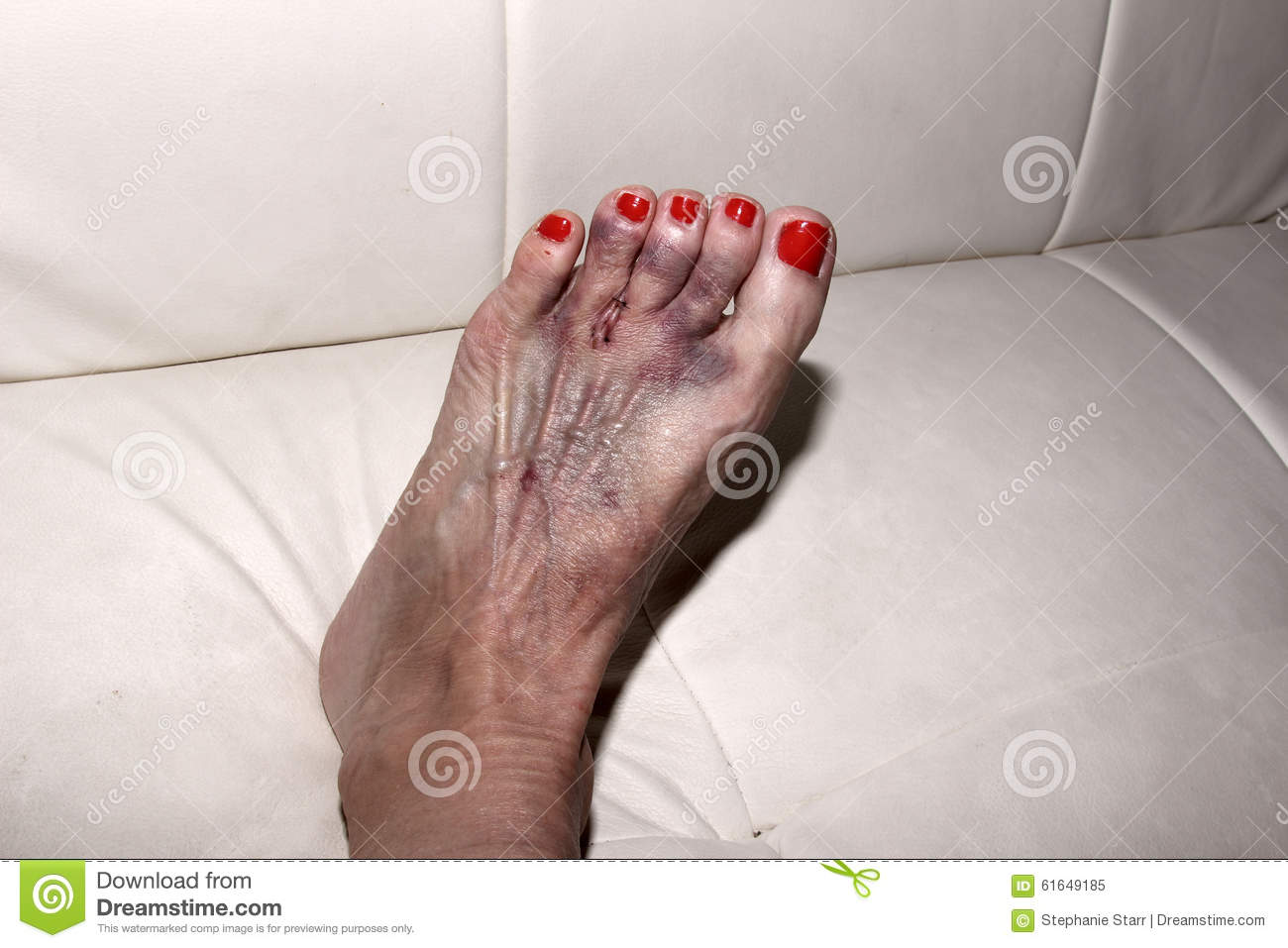 result of morton 39 s neuroma surgery on a woman 39 s foot stock image image of bandage position. Black Bedroom Furniture Sets. Home Design Ideas