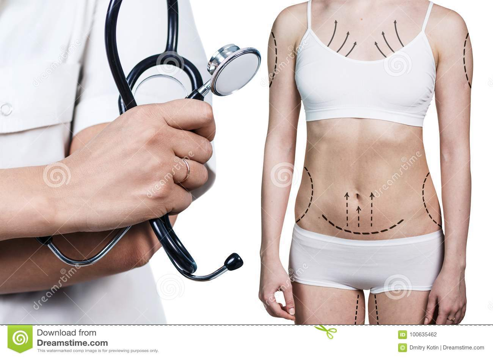 Cirugia de perdida de peso