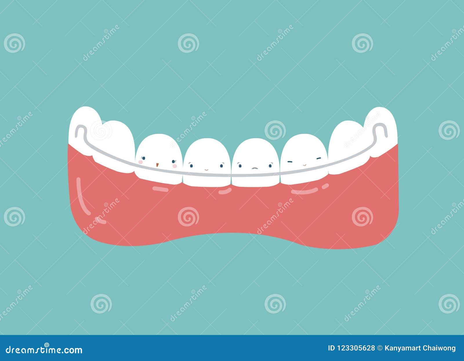 Retainer Teeth, Dental Concept Stock Vector - Illustration