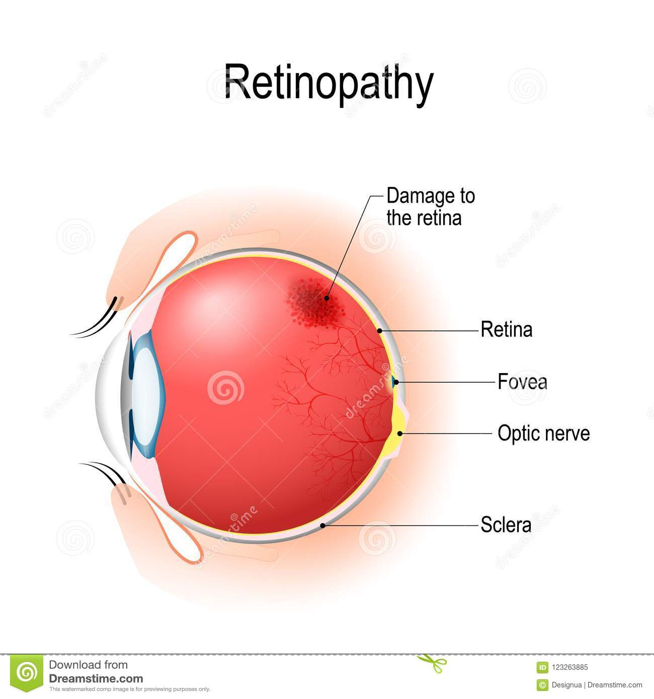 Retinopathy. Vertical Section Of The Eye And Eyelids With Damage ...