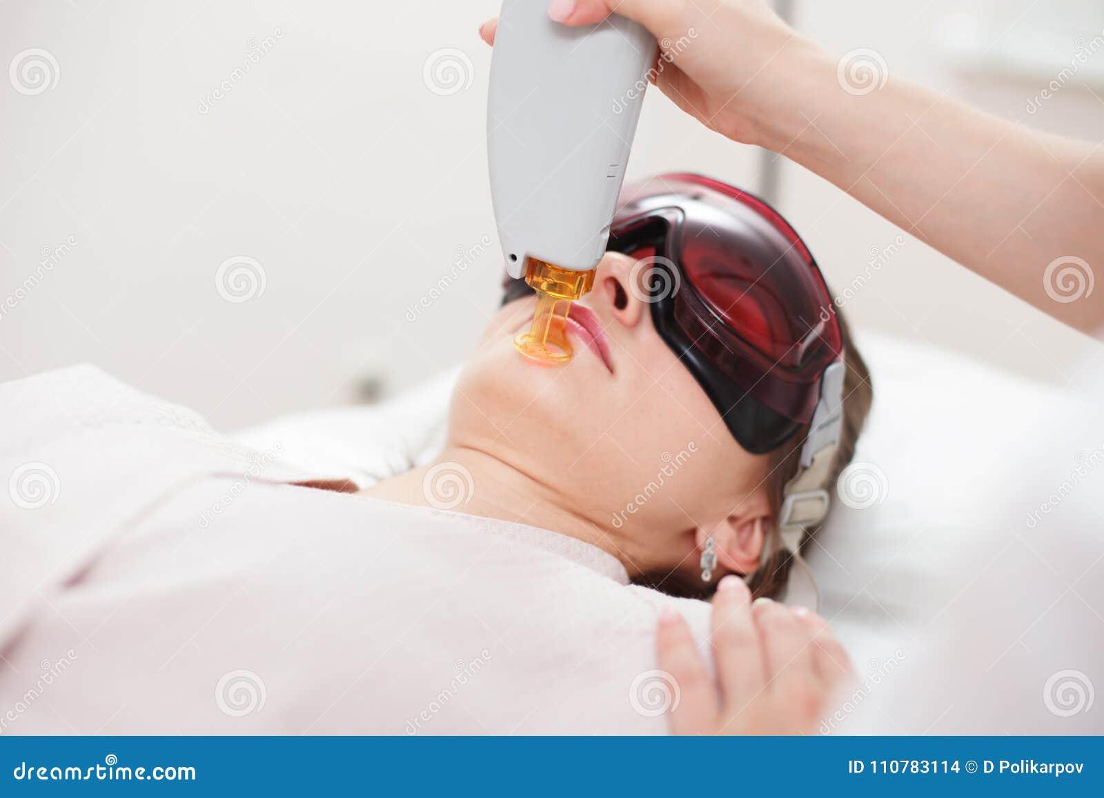 Retiro del pelo del laser en la cara del ` s de la muchacha Cosmetología del aparato SP