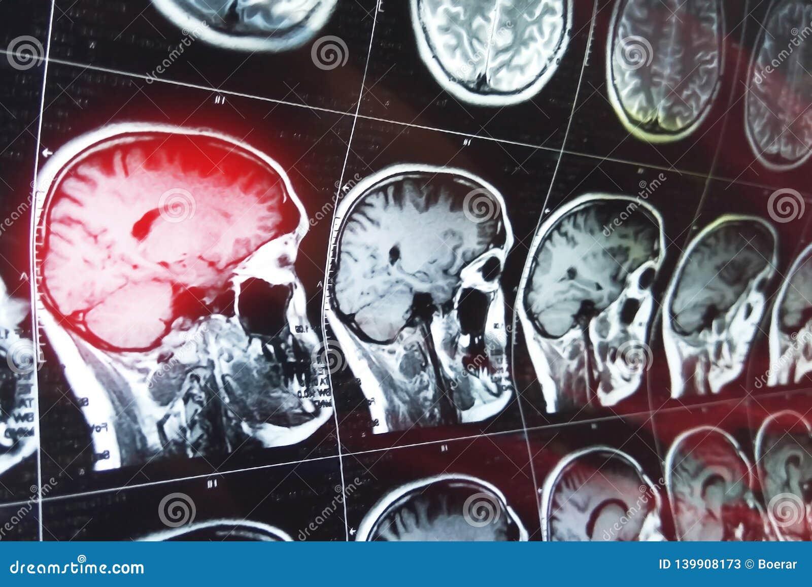Rezonansu magnetycznego obraz cyfrowy mózg z czaszką MRI głowy obraz cyfrowy na ciemnego tła błękitnym kolorze