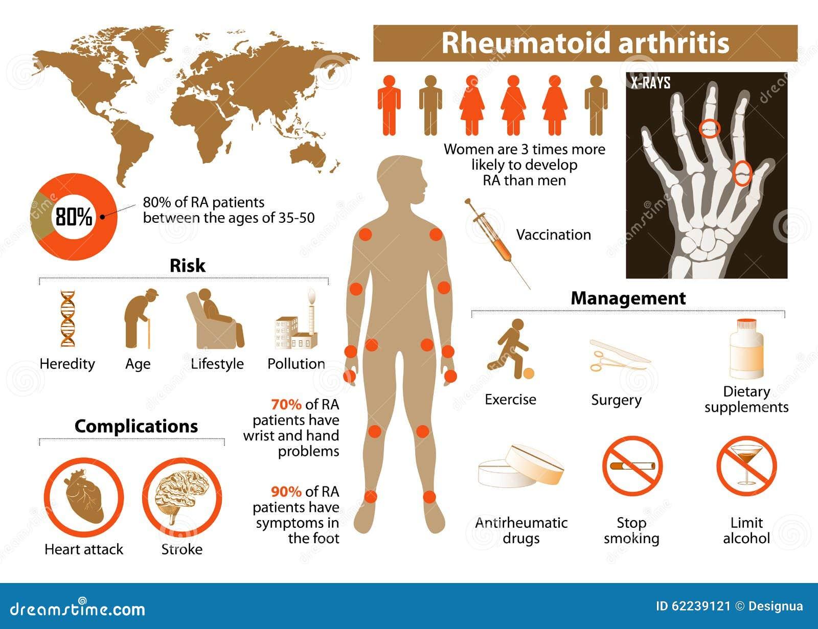 Rheumatische Arthritis
