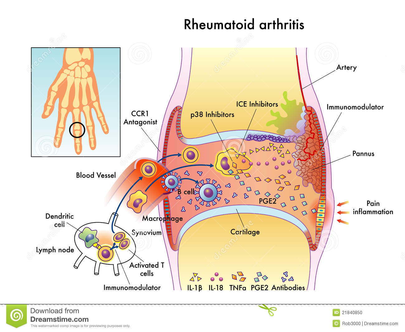 Medical illustration of the effects of the Rheumatoid Arthritis.