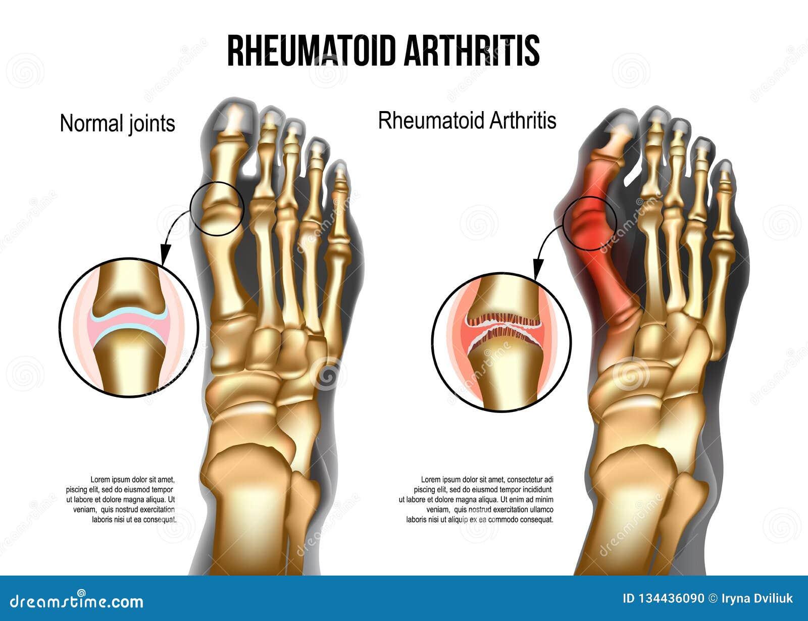 Rheumatoid Arthritis Bones The Of Foot Stock Vector Illustration