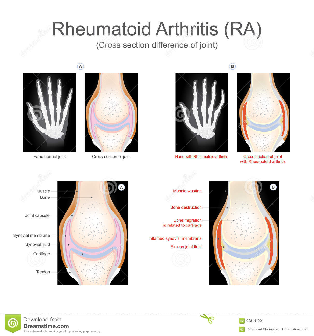 Rheumatoid Cartoons, Illustrations & Vector Stock Images. Car Insurance Quotes Online Four Oaks Bank. Online Interior Decorating Courses. Vanity Toll Free Search Online Robotics Course. Best Psychology Schools In California. Enterprise Storage Cost Per Tb. Cash Advance 4 Business Fau Doctoral Programs. D West Motivational Speaker Plank Pose Yoga. John Wood Water Heater Problems