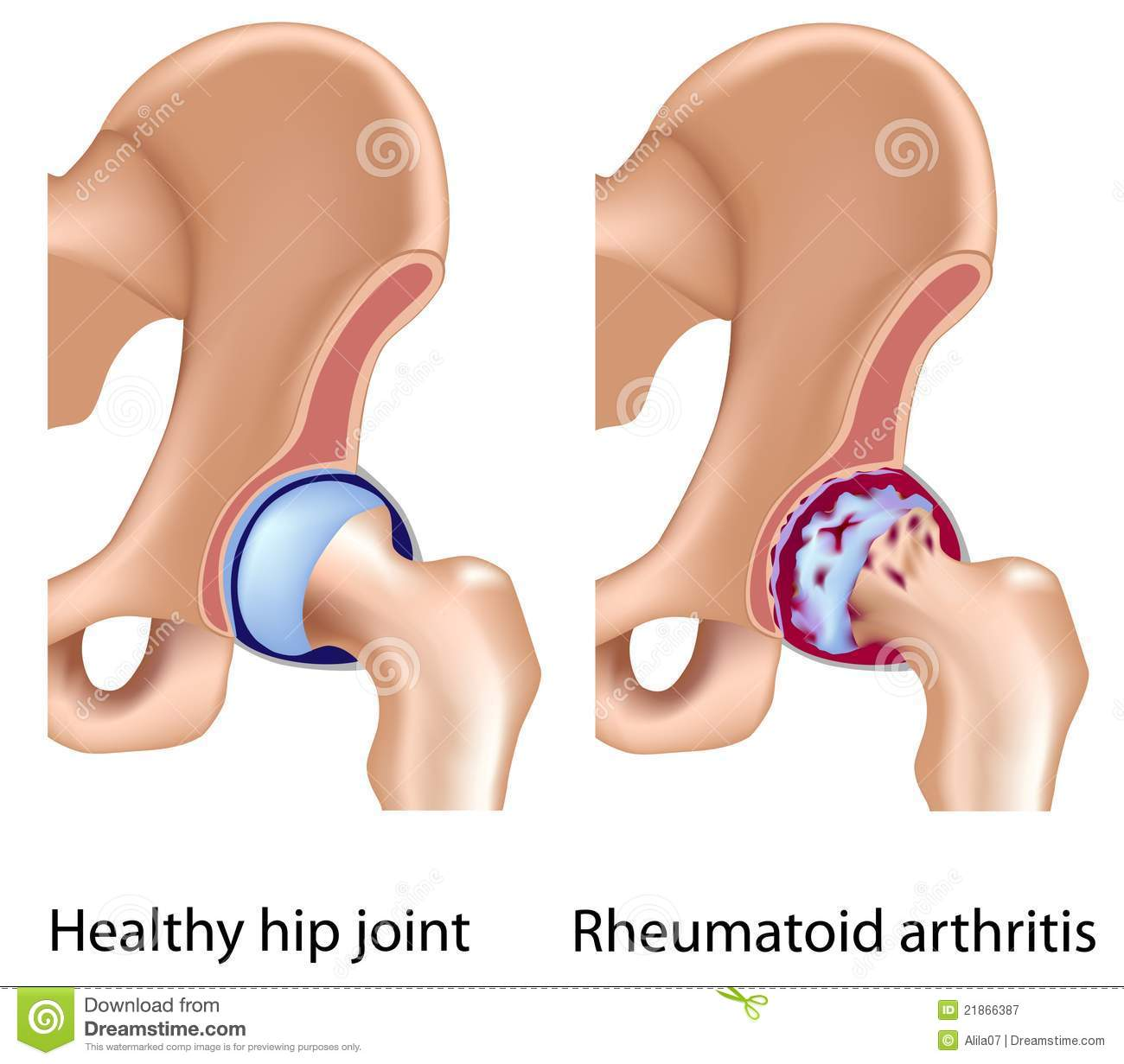 Rheumatoid Arthritis Of Hip Joint Stock Vector Illustration Of