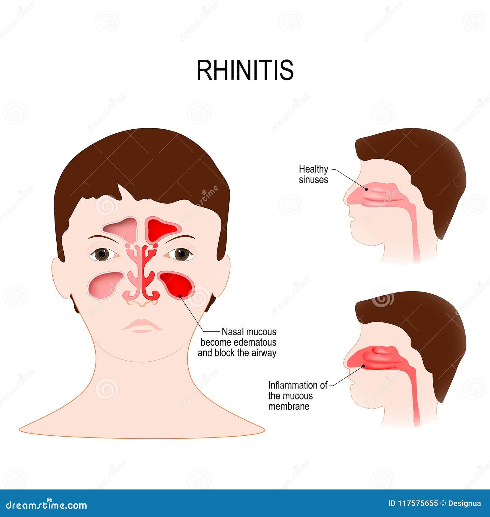 inflammation i slemhinnan