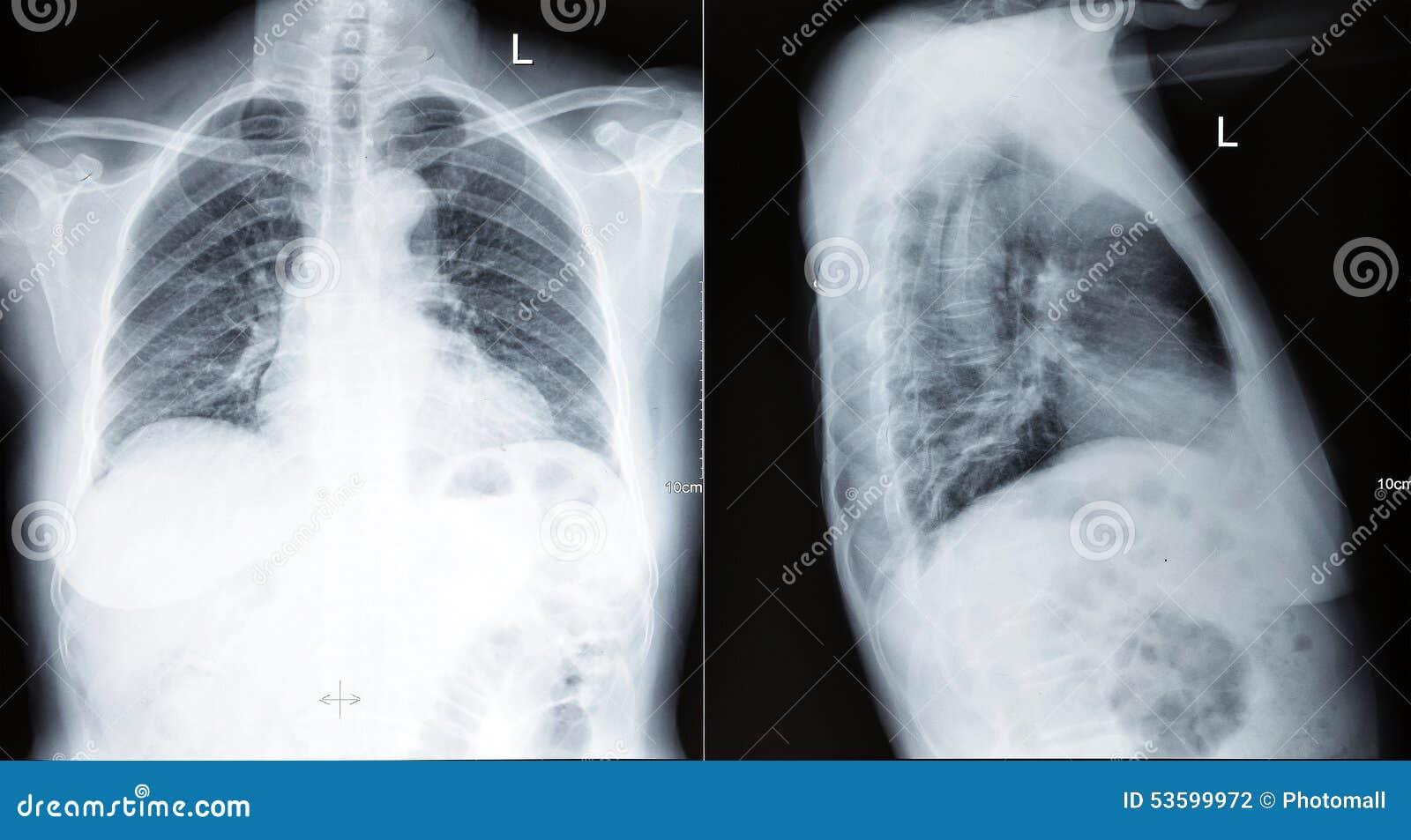 Ricerca dell esame radiografico del torace