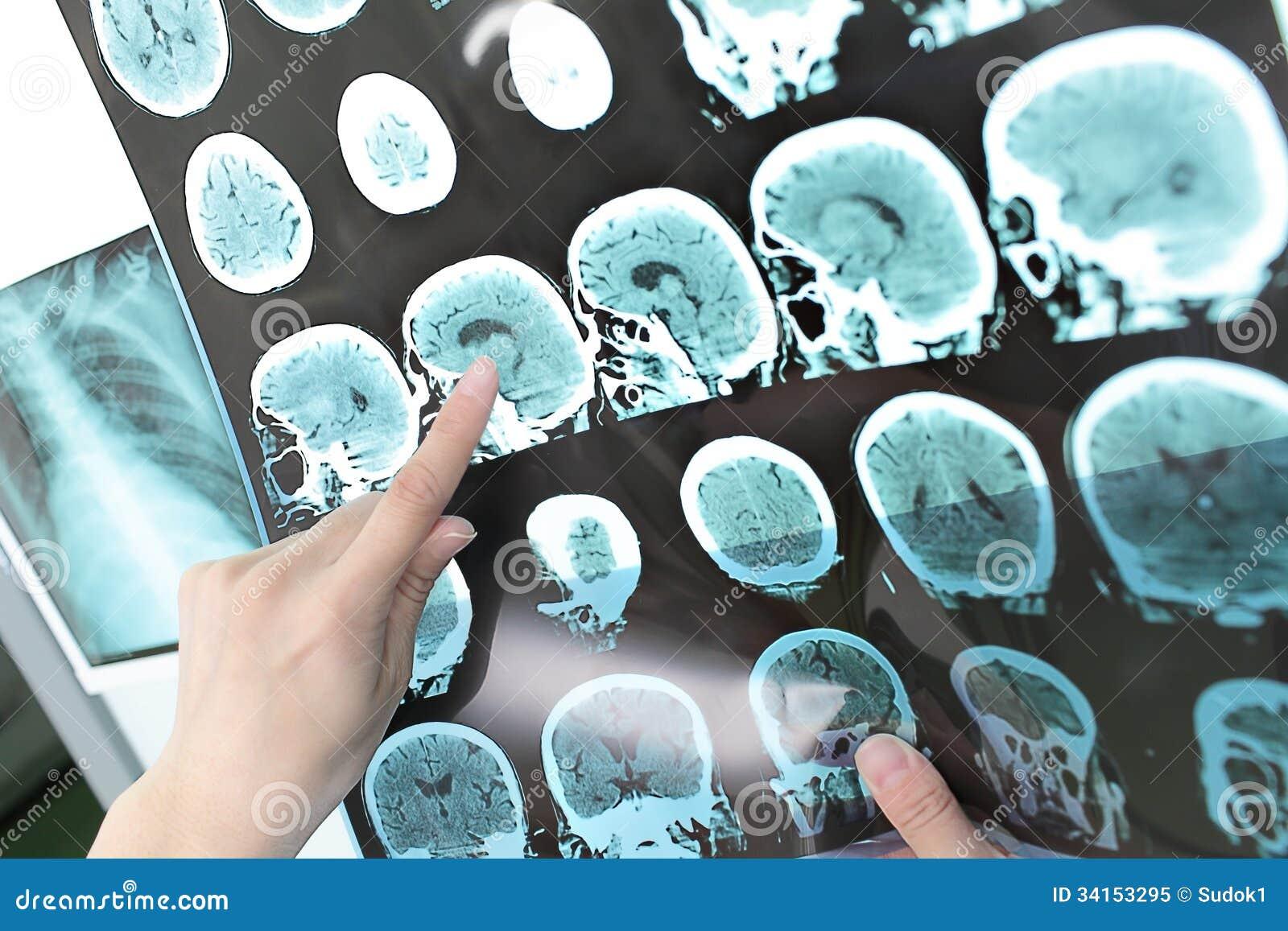 Ricerca di CT dell uscita di punto di vista di medico.