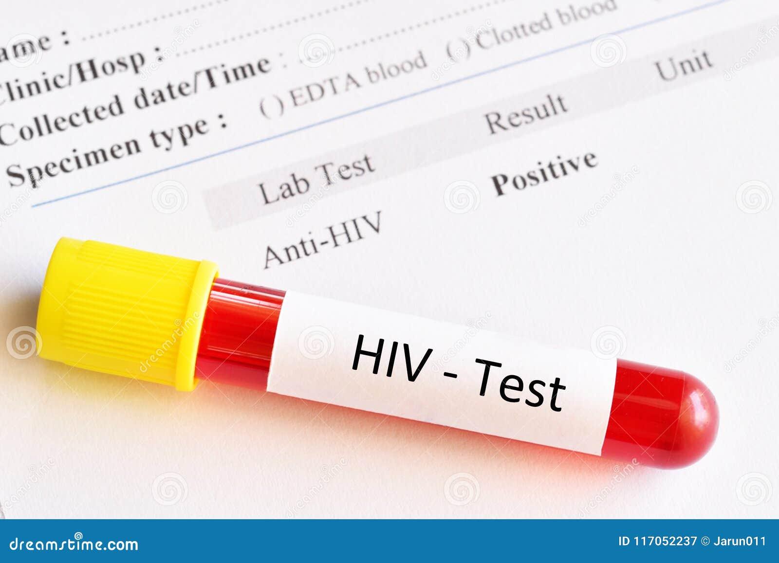 HIV positivo dating UK