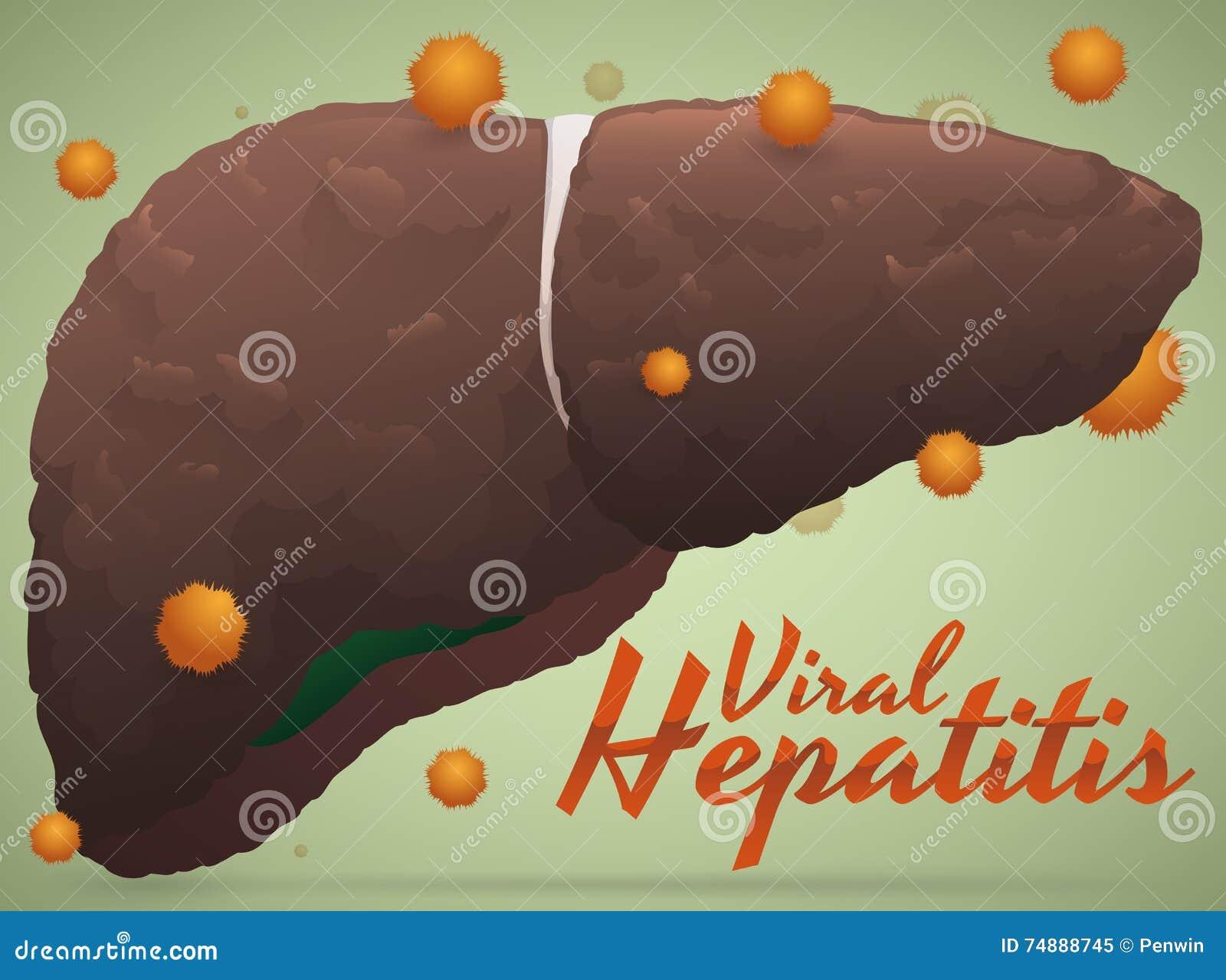 Risultato malato del fegato di epatite virale con il virus intorno, illustrazione di vettore
