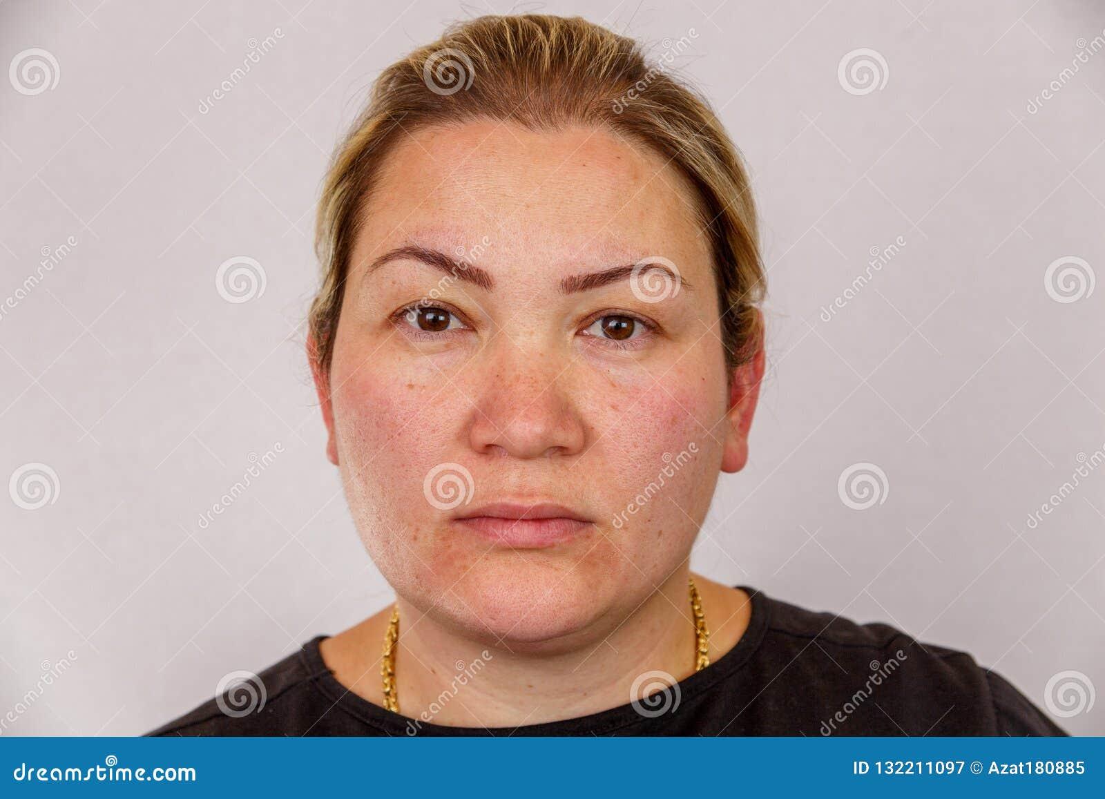 38 roczniaka Kaukaska kobieta z z nadwagą i hormonalnym zakłóceniem pokazuje jej twarz z skóra problemami Na lekkim odosobnionym