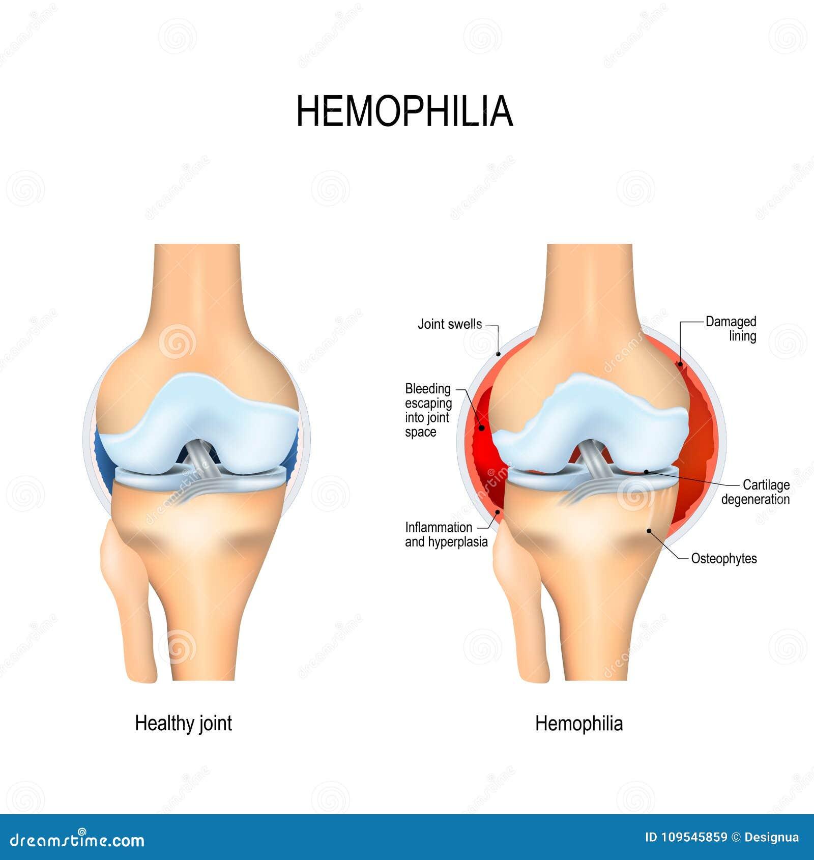 Rodilla Humana Con Hemofilia Y La Junta Sana Ilustración del Vector ...