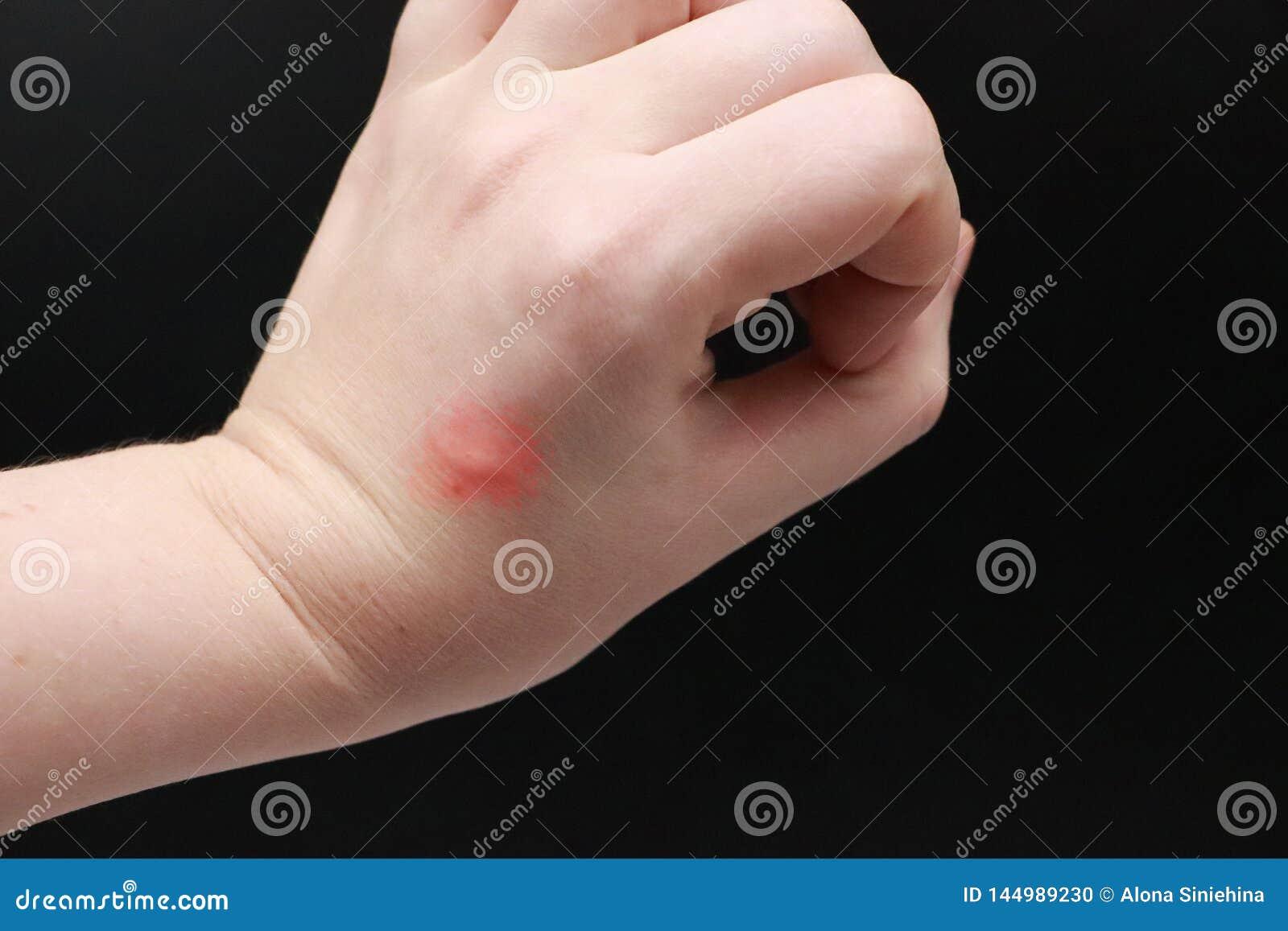 Rojez y el picar en el brazo El doctor examina la mano en la cual la mordedura de un insecto, un mosquito