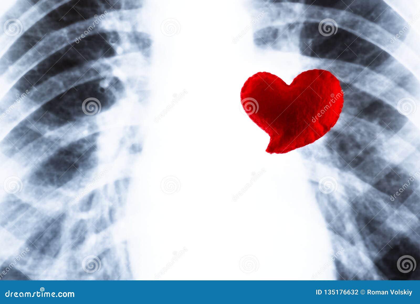 Rood hart op de achtergrond van borströntgenstraal Concept hartaanval, tuberculoseziekte Ontwerp op het thema van een phthisator