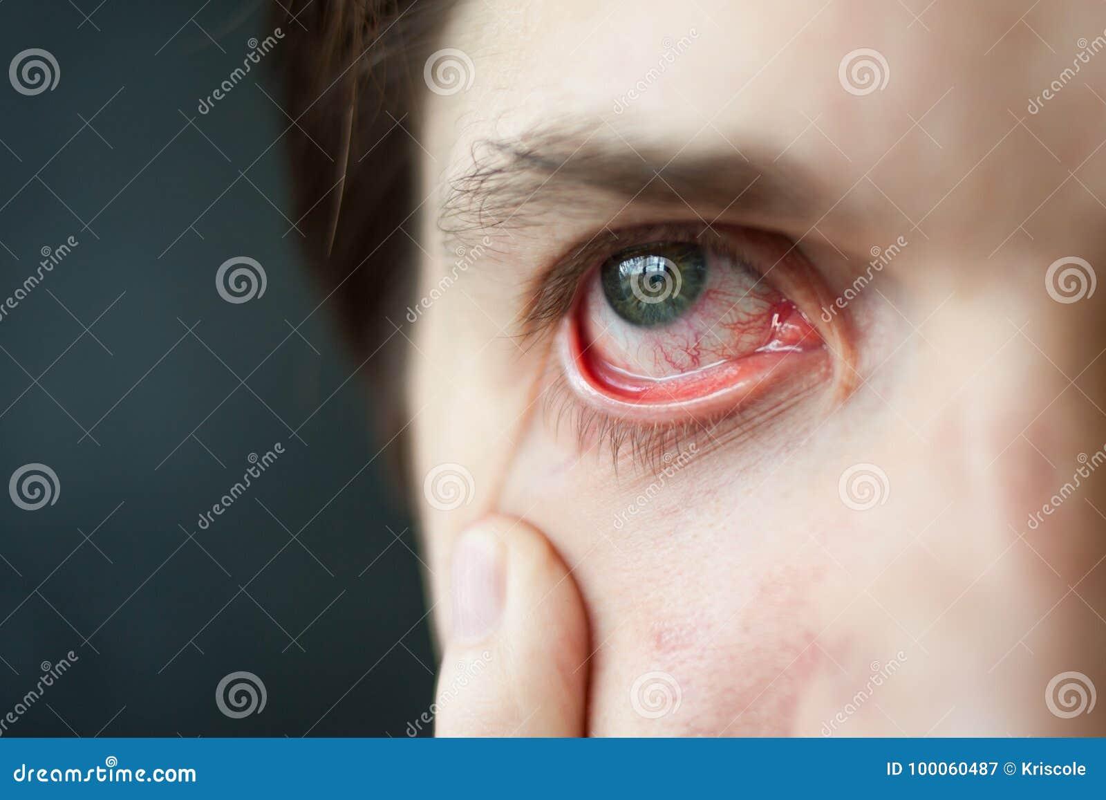 Rood het oogclose-up van mensen, moeheid, problemen met bloedvat