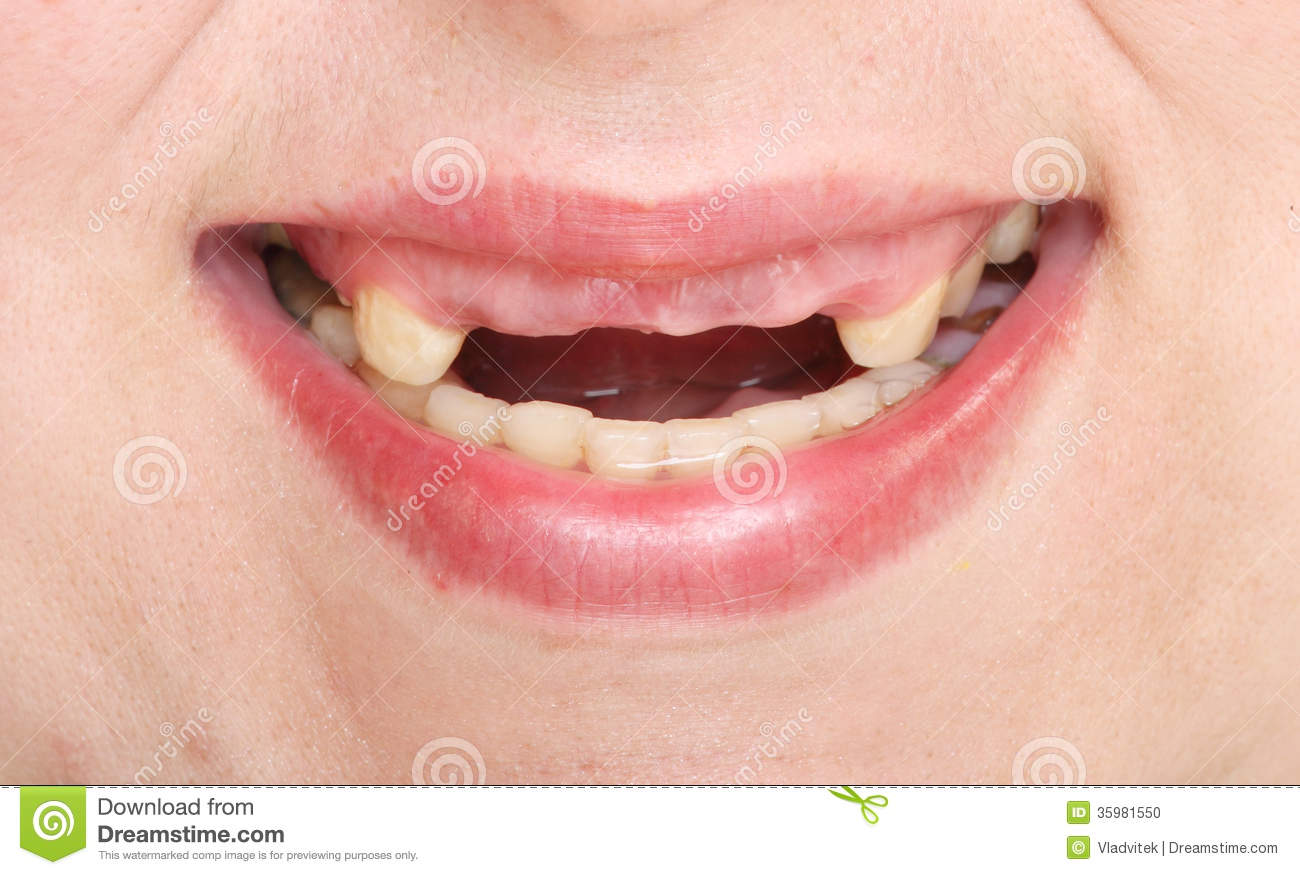 Rotten Teeth. Stock Photo - Image: 35981550