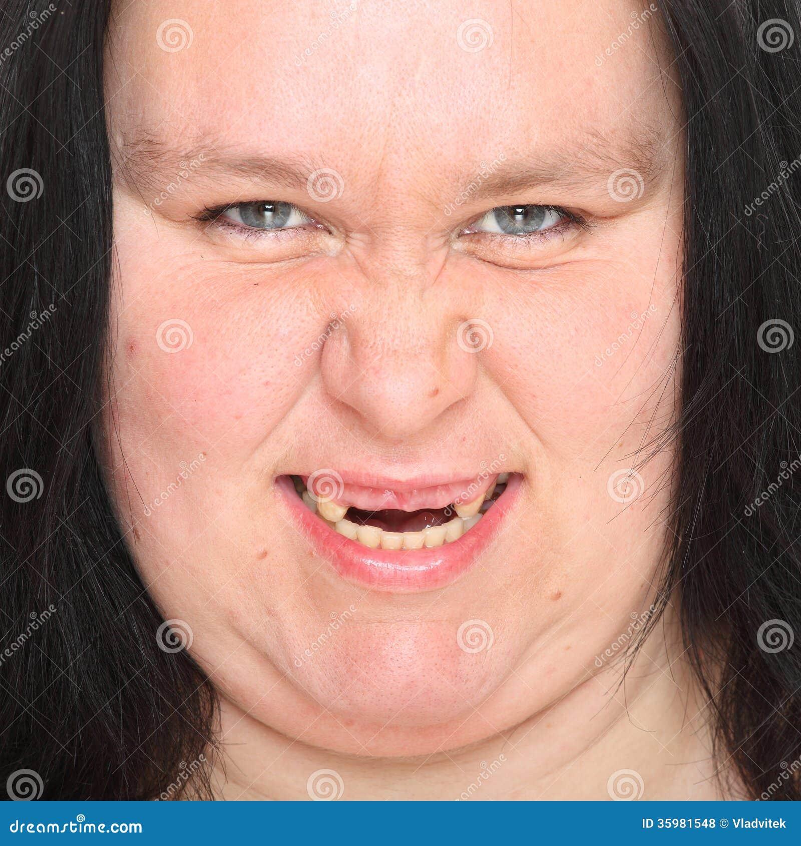 Rotten Teeth Stock Photo Image Of Hygiene, Medical - 35981548-4456