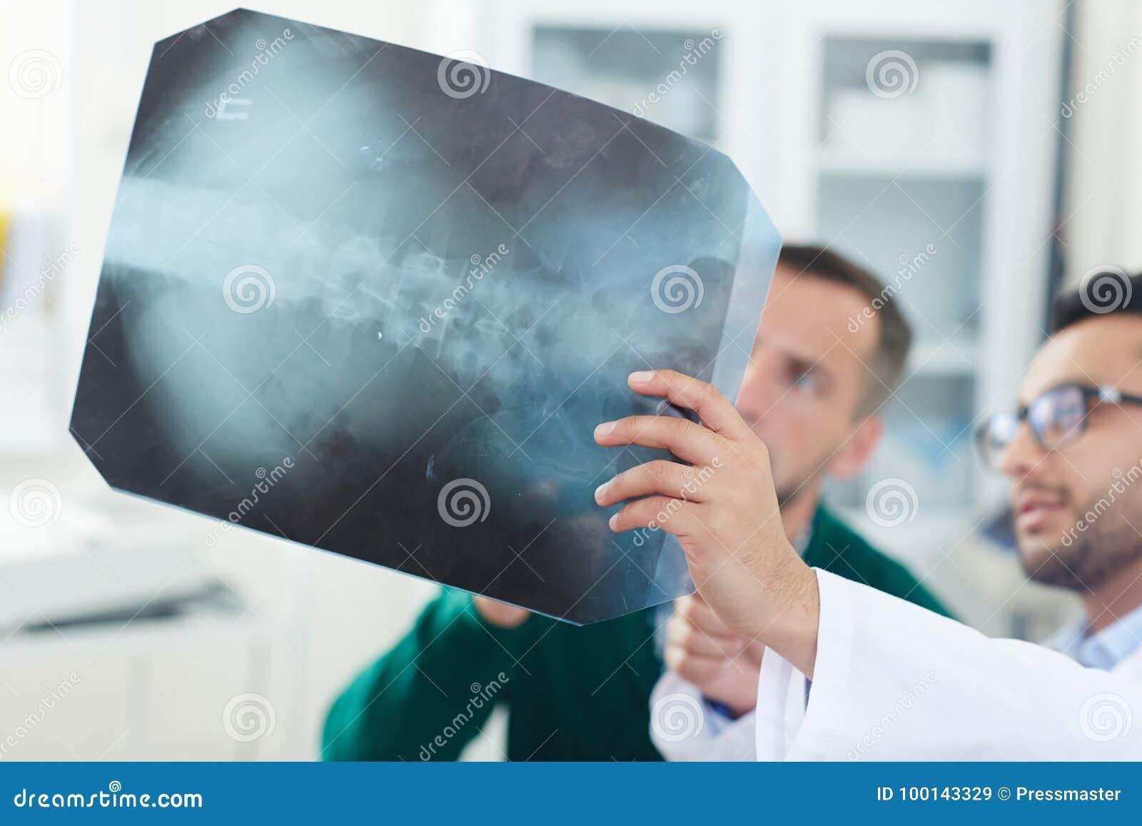 Ruggegraats Röntgenstraal