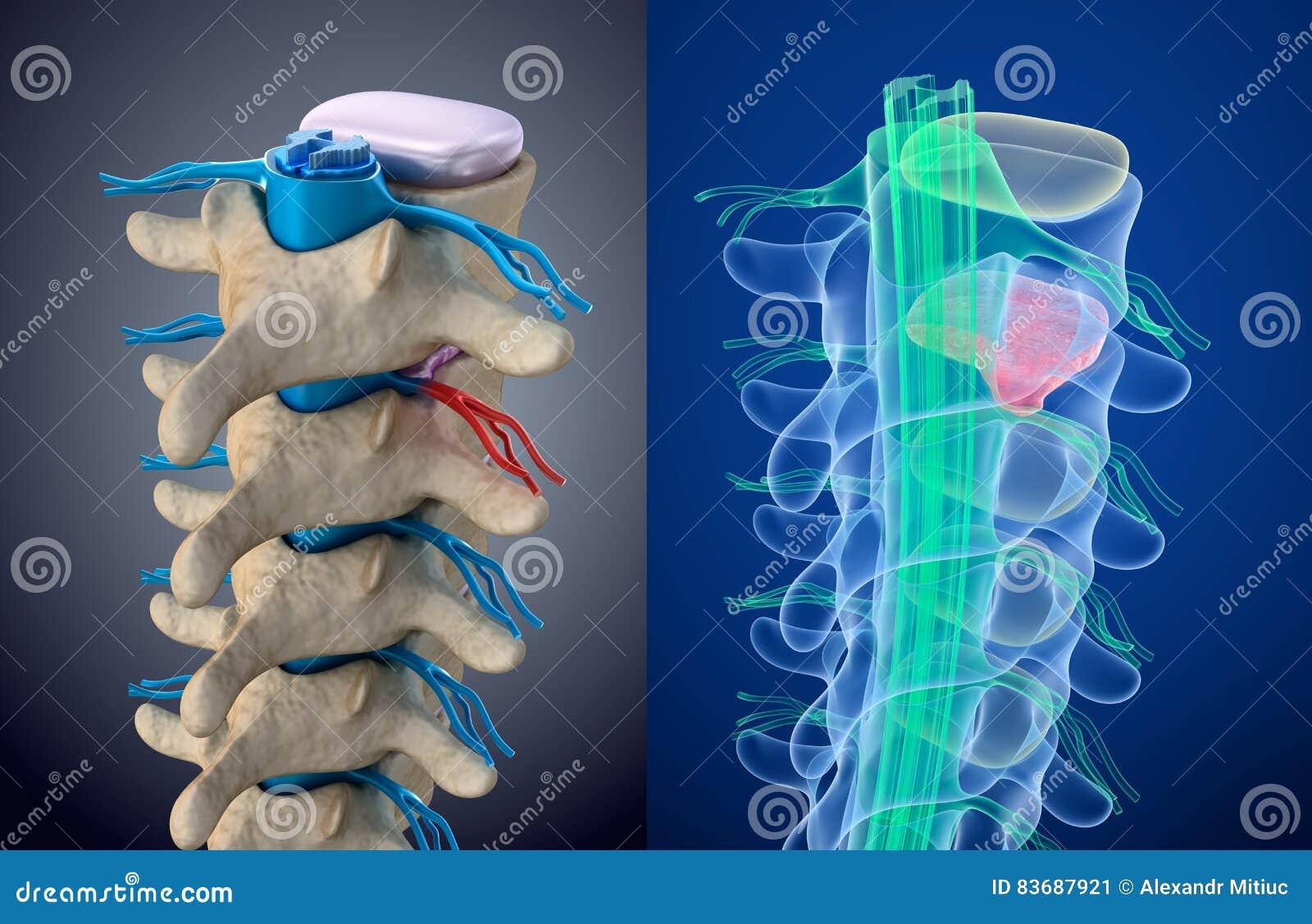 Ruggemerg onder druk van doende zwellen schijf Röntgenstraalmening Medisch nauwkeurige illustratie