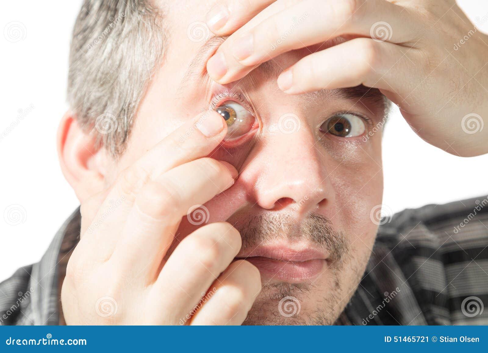 Sätta på en kontaktlins