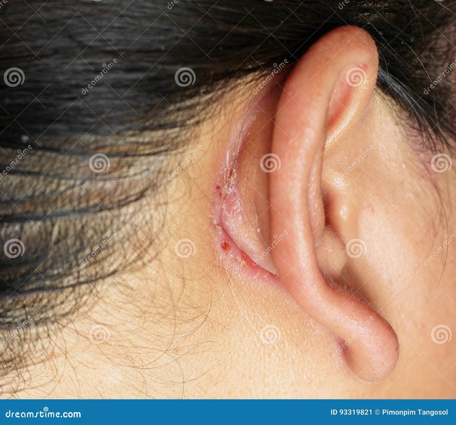 sår i örat