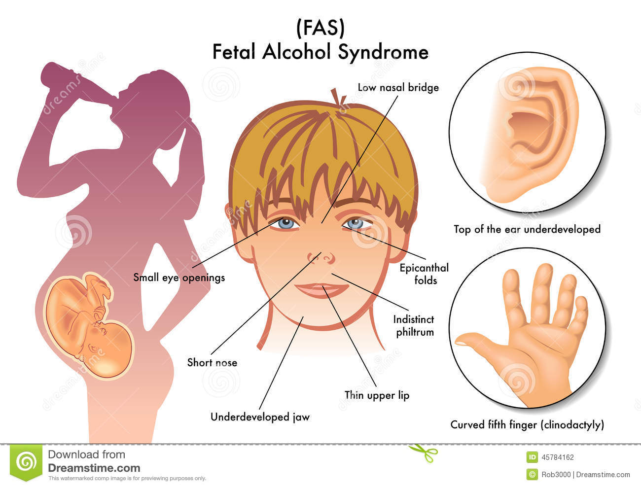 GALLERY: Fetal Alcohol Syndrome Hands