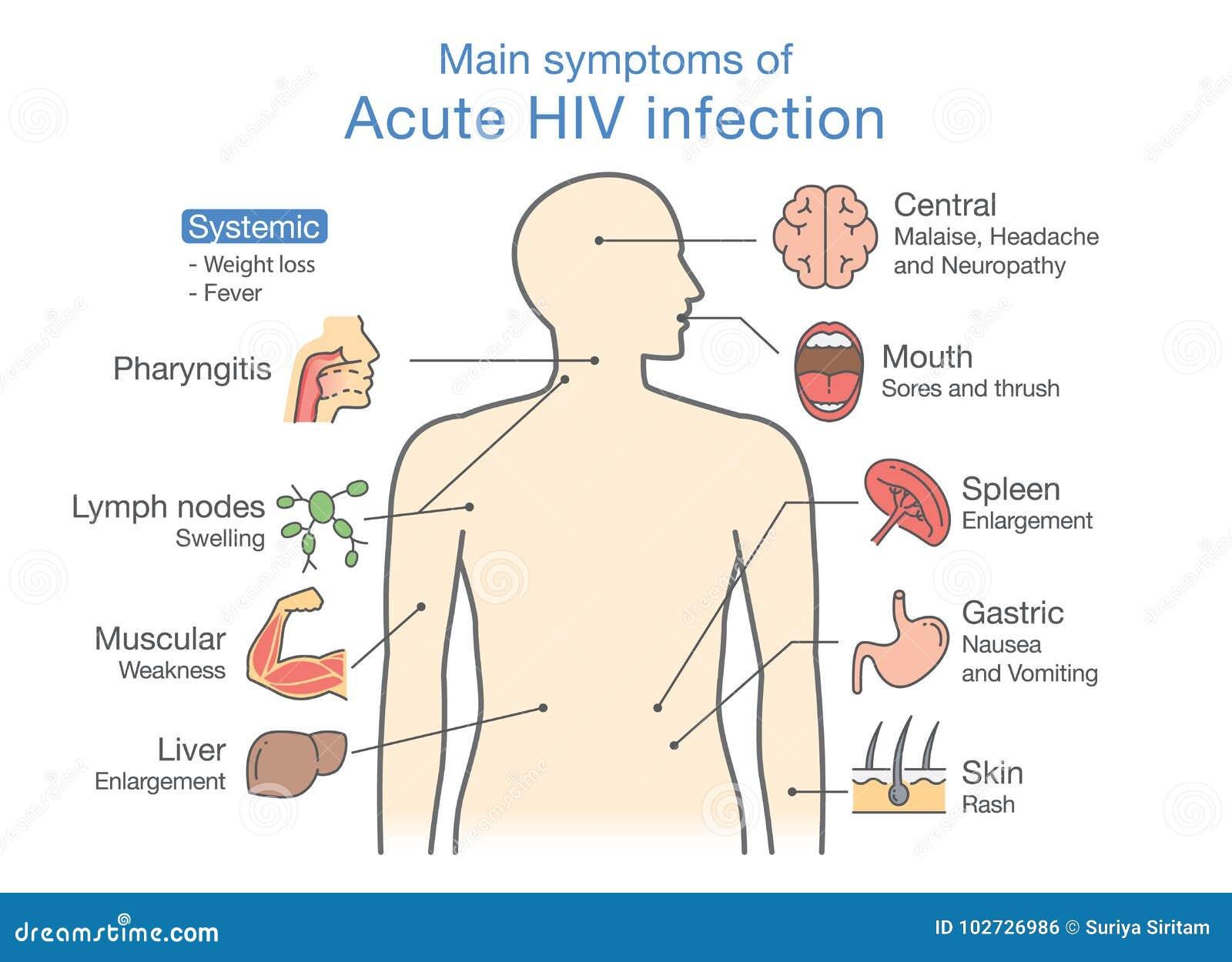 Síntoma principal de la infección VIH aguda