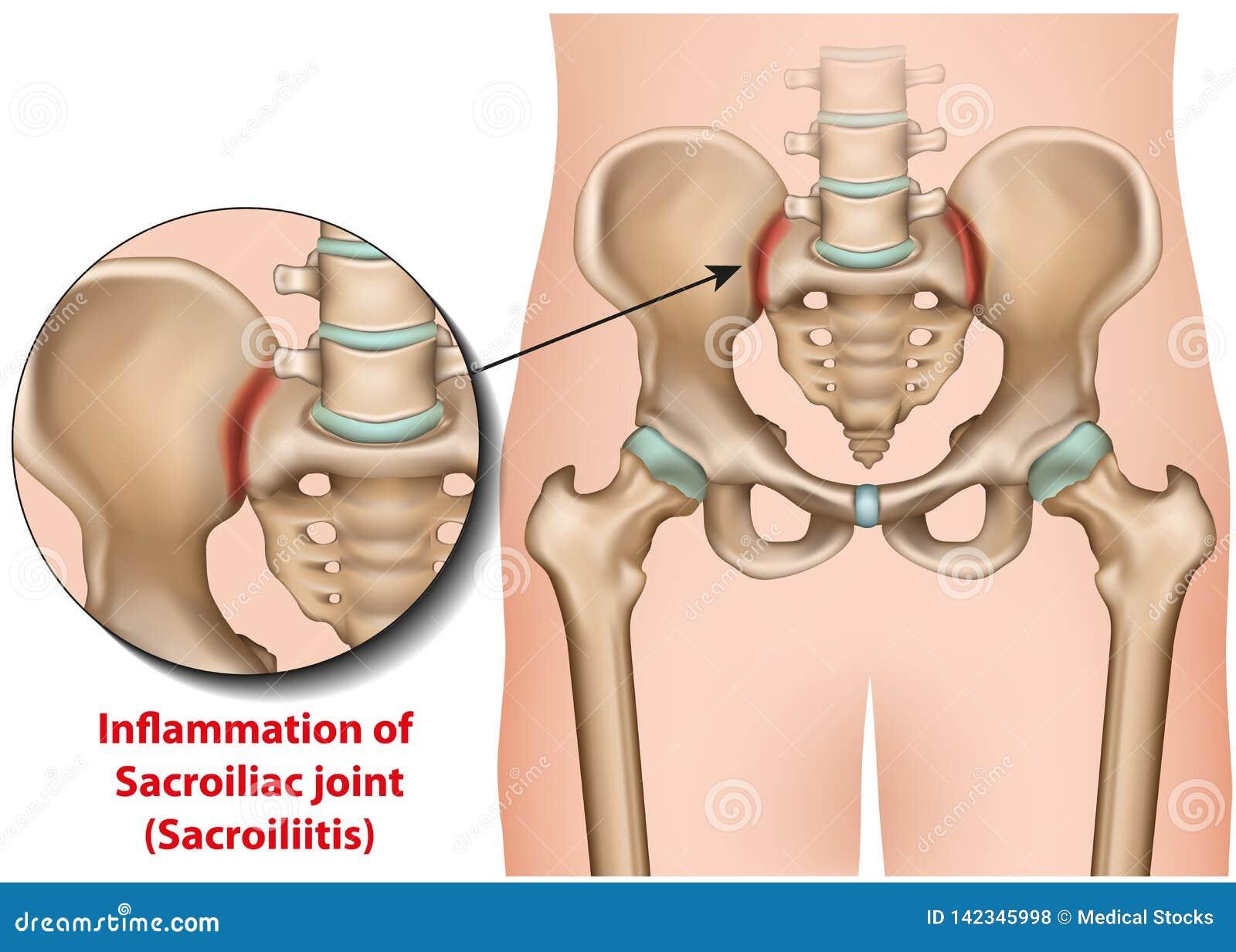 Sacroiliac gemeinsames medizinisches sacroiliitis Illustration der Entzündung 3d