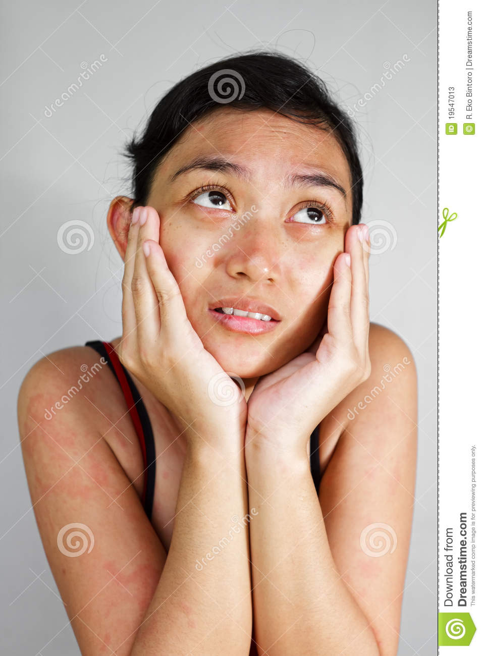 Long woman with facial rash certainly not