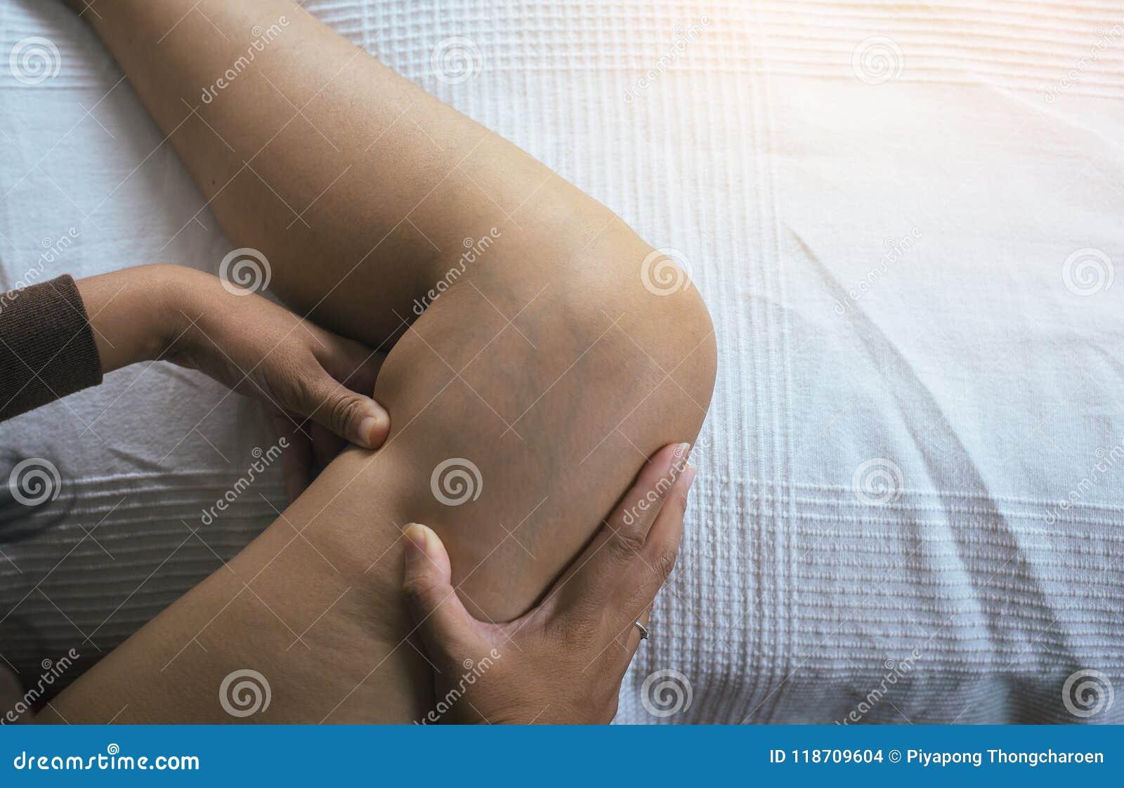 Salute della pelle di concetto, primo piano di, vene varicose sulla gamba della donna