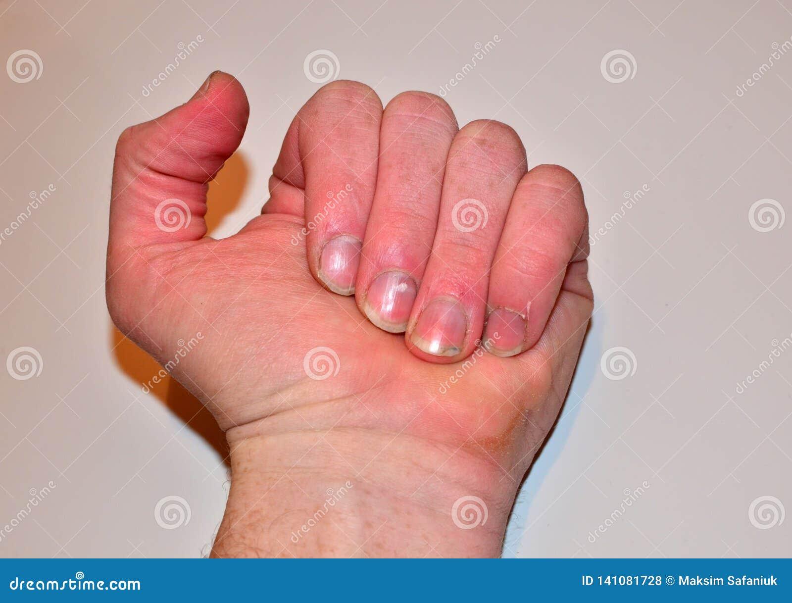 Samiec przybija chorobę i no robi gwoździowi, paznokcia odżywki brak no kształtować i no dbać