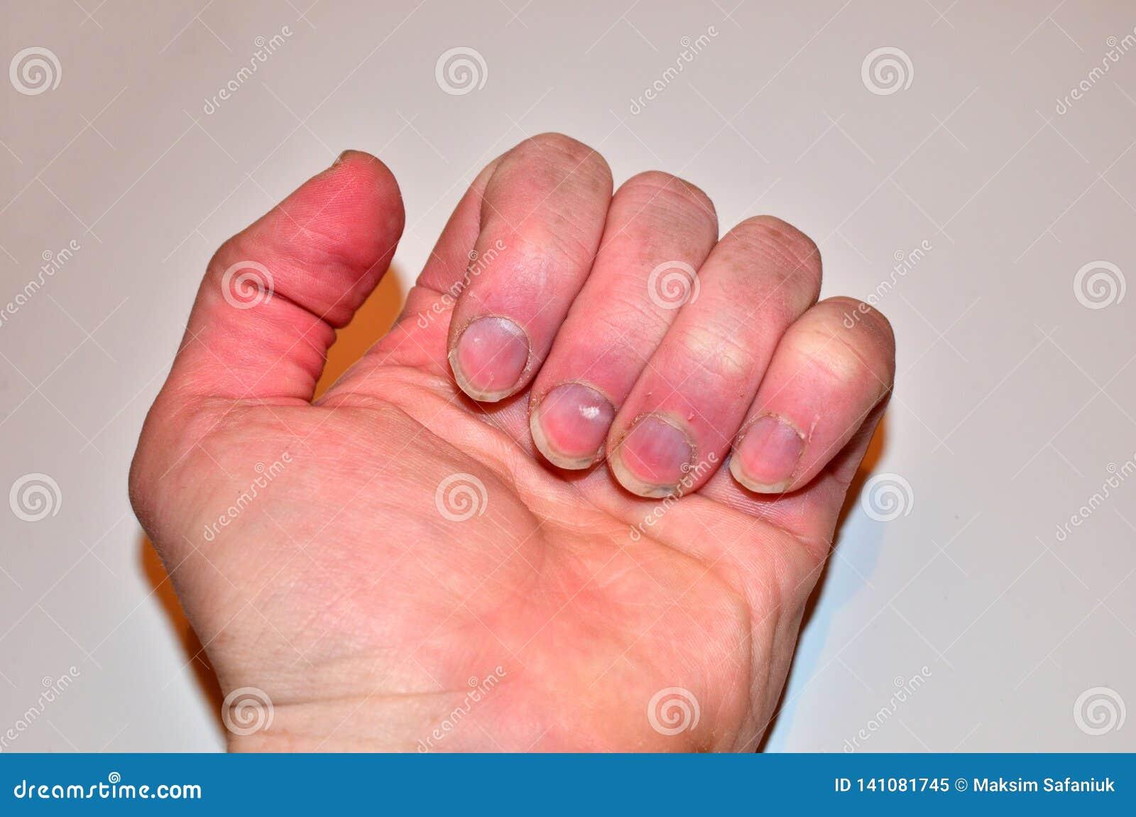 Samiec przybija chorobę i no robi gwoździowi, paznokcia odżywki brak no kształtować i no dbać,
