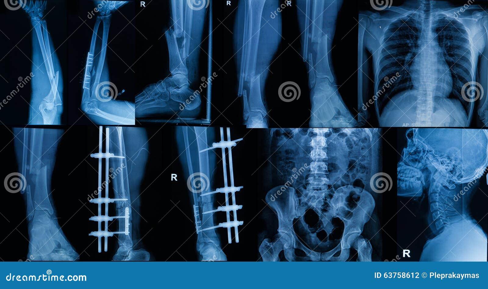 Samling av röntgenstrålen, åtskillig del av den vuxna showbrottbonen