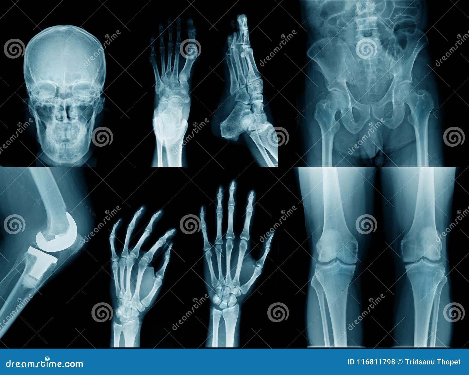 Samlingsröntgenstrålebild