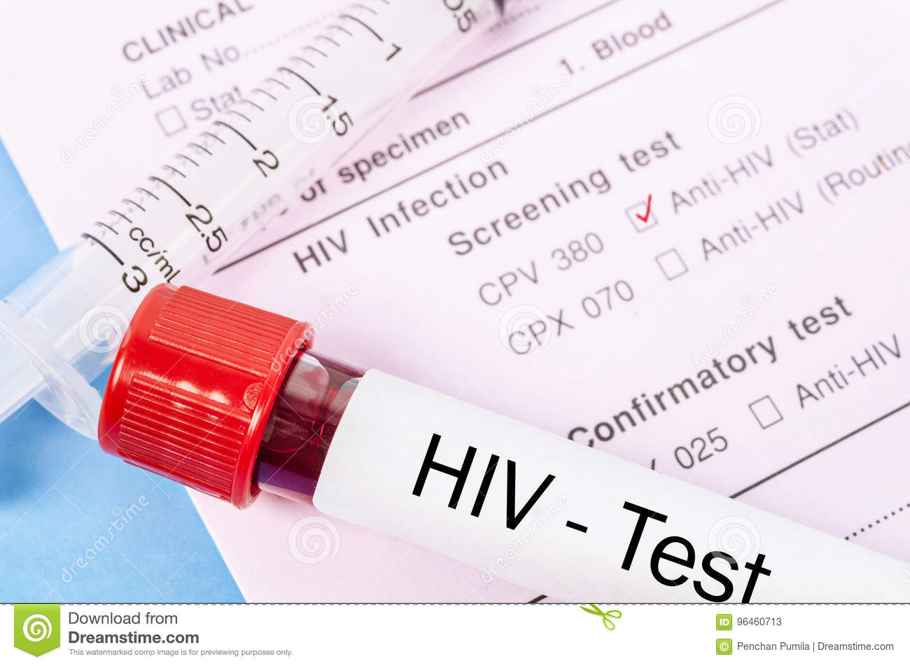 Sample Blood Collection Tube With Hiv Test Stock Image Image Of