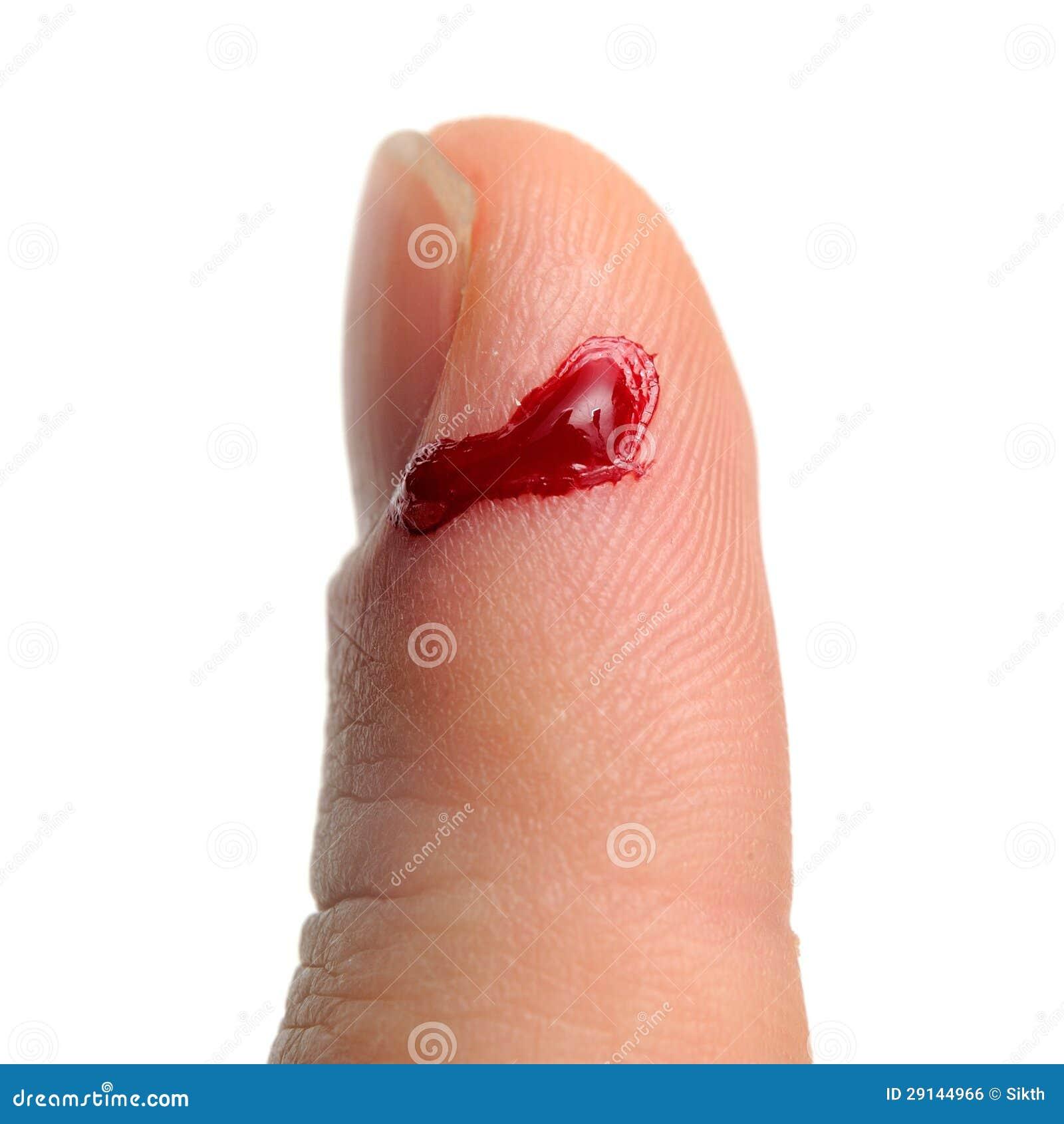 Sangramento do dedo cortado