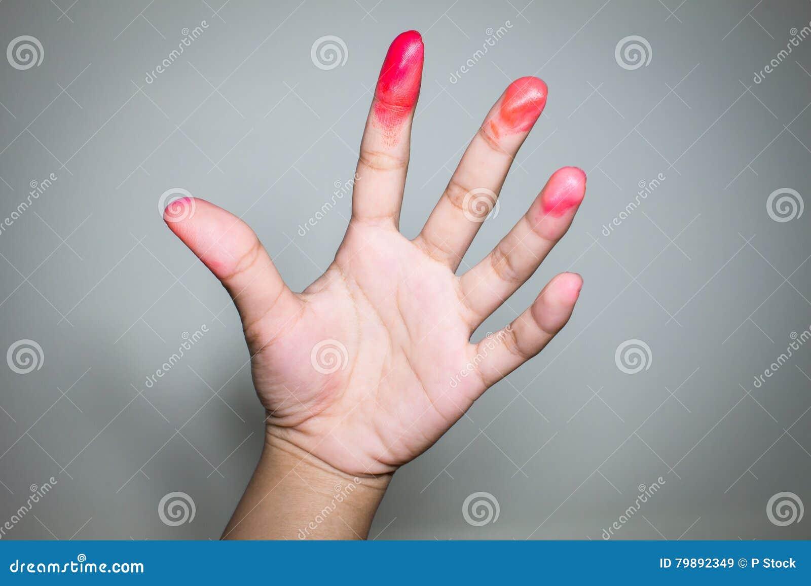 Sanguinoso sulle dita