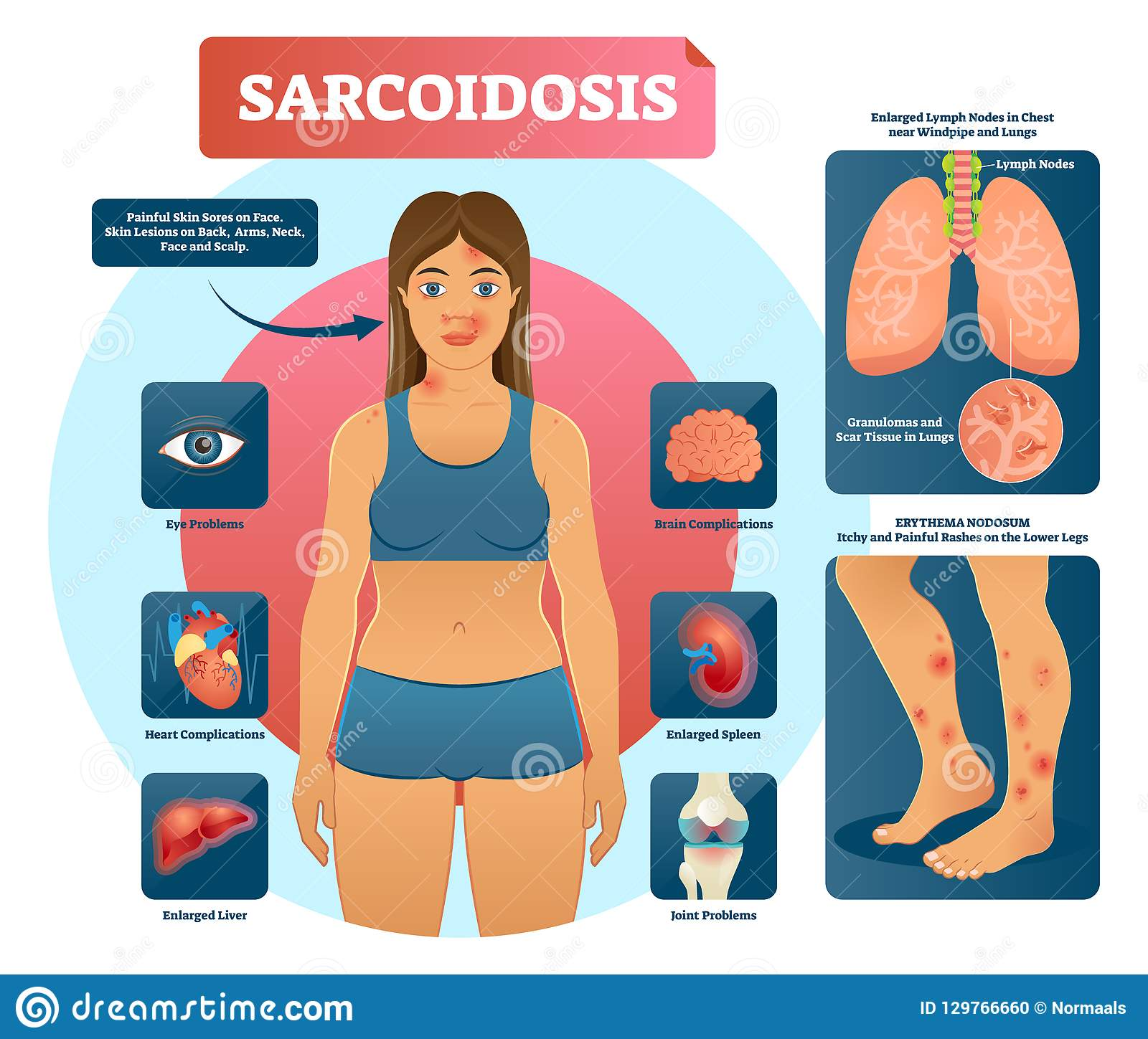 Sarcoidosis vector illustration. Lungs, heart, eyes autoimmune disease