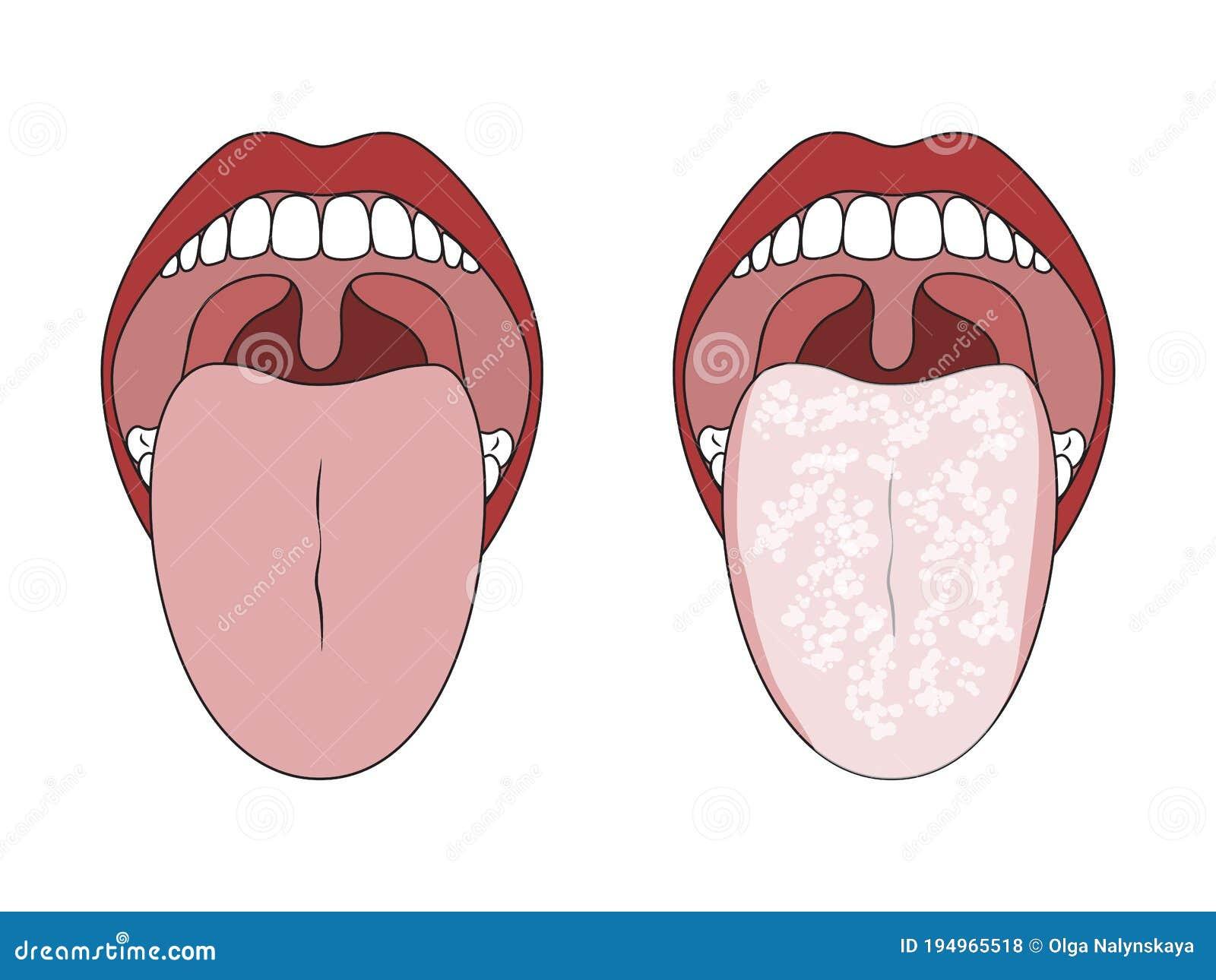 Zunge grau belegte Brauner Überzug