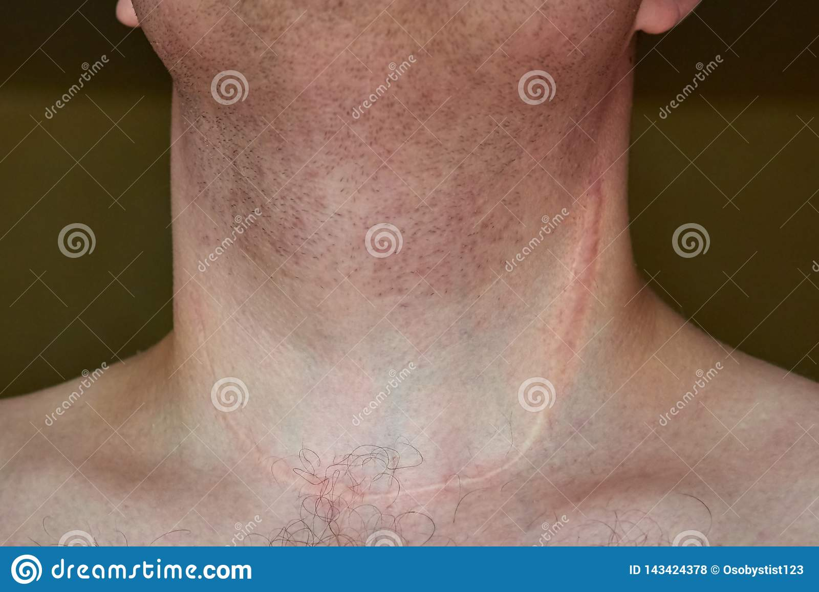 Scar On The Neck Of A Man After Removal Of The Thyroid Gland Stock