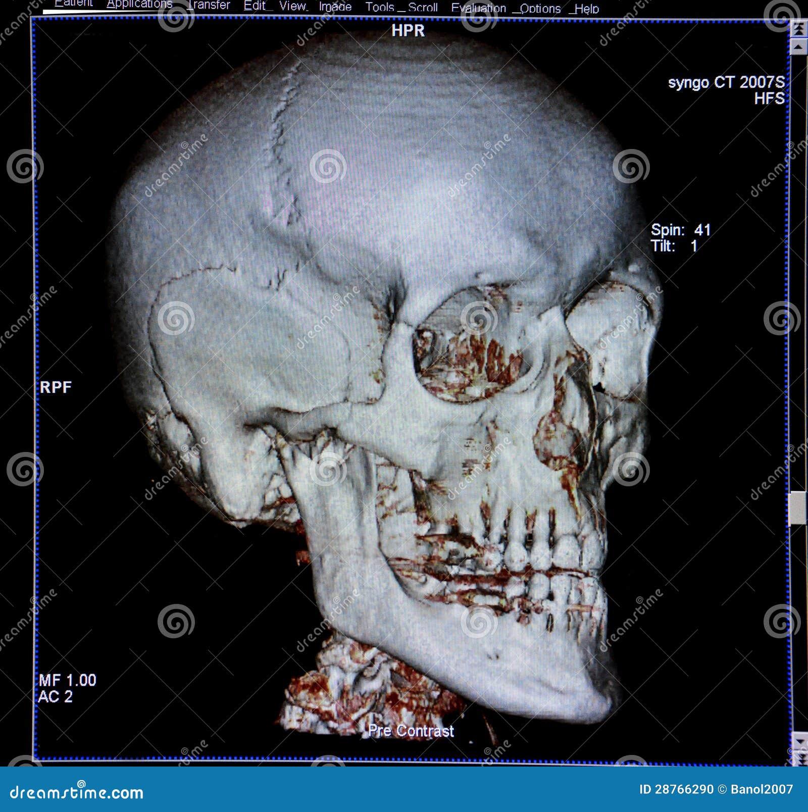 Ausführliches Menschliches Schädel Röntgenbild Stockbild - Bild von ...